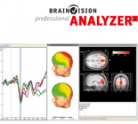 EEG Analysis Analyzer 2